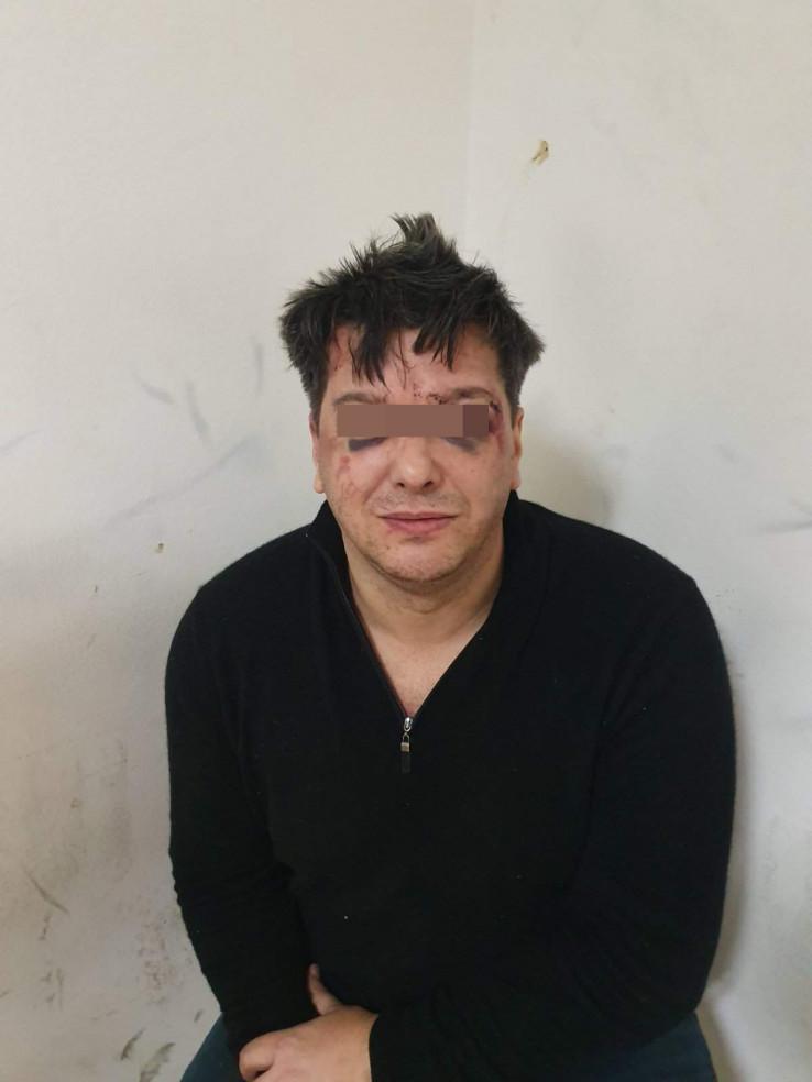 Krvni podljevi po licu