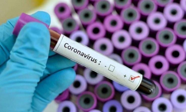 Testirano ukupno 50.815 uzoraka u Federaciji BiH