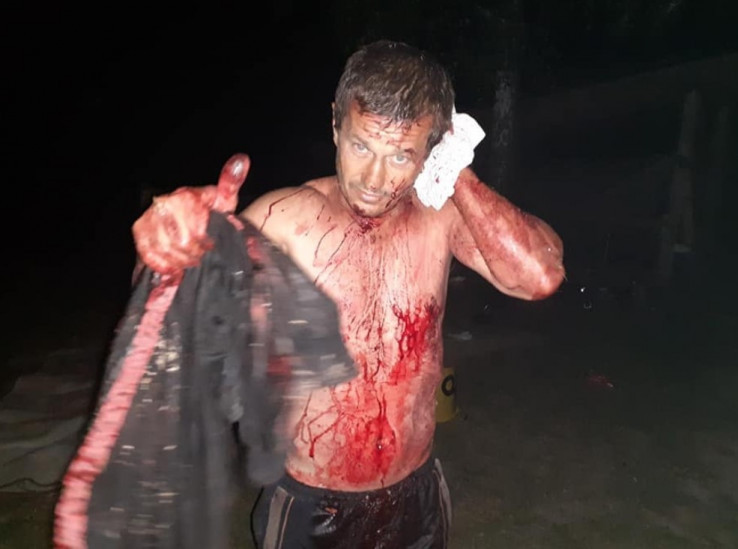 Zikret Kantarević neposredno nakon što su ga migranti pretukli