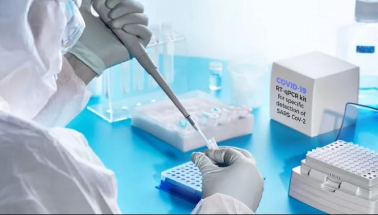PCR test od danas košta 140 KM