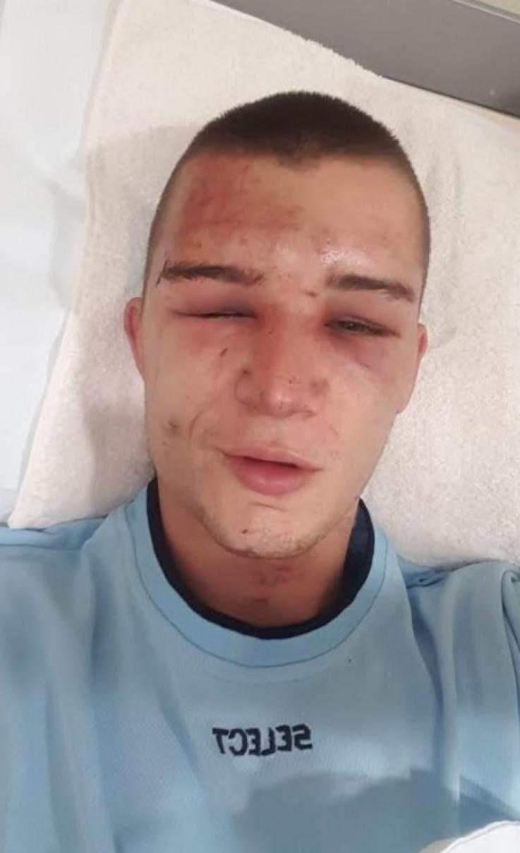 Buljina: Dobio sam 36 udaraca u glavu