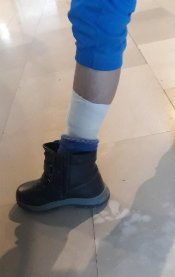 Dječak zadobio povredu noge