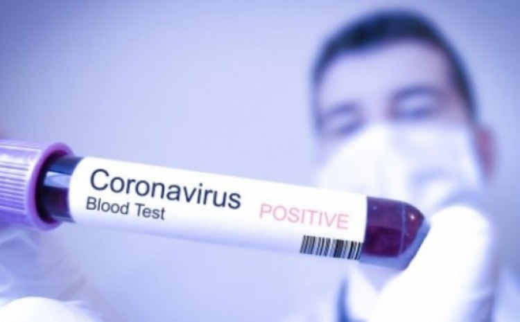 There are currently 19,313 active cases of SARS-CoV-2 in FB&H