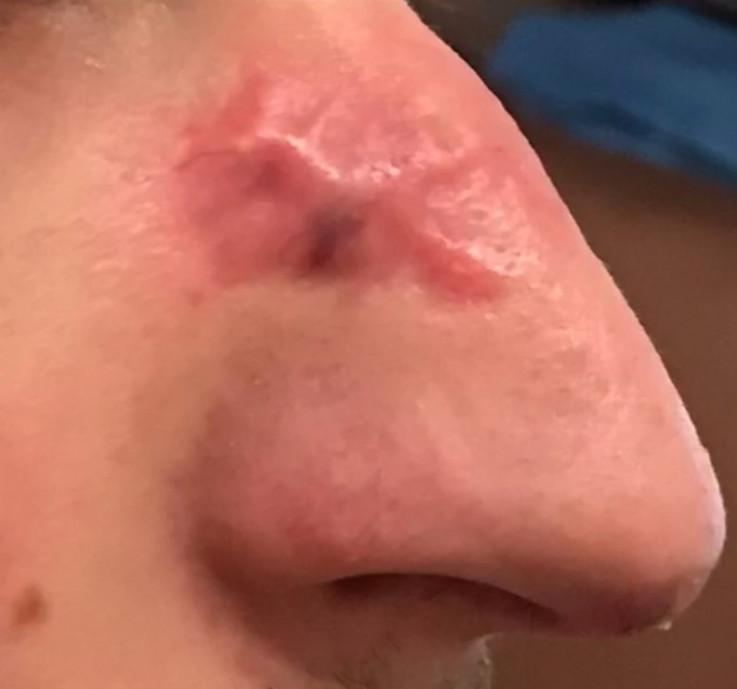 Ožiljak na Slavkovom nosu