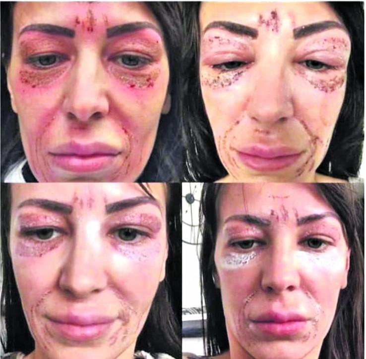 Ženama će ostati doživotni ožiljci