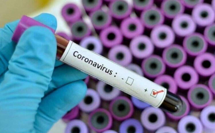 Dosad su date 315.653 doze vakcina protiv koronavirusa