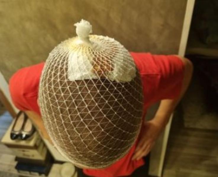Maloljetni Krstić zadobio i povrede glave