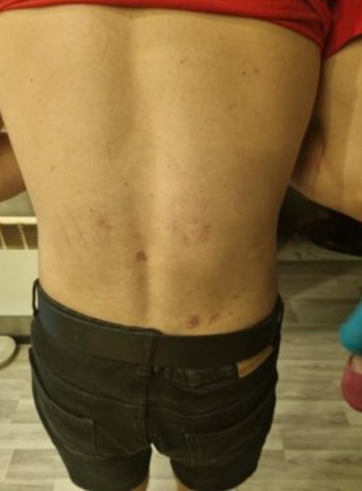 Povrede na leđima Đorđa Krstića